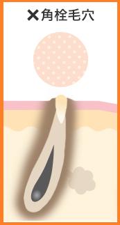 ビーグレン 毛穴